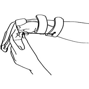 Hand och övre extremitet