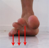 Foot and Ankle Strengthening